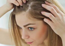 Women thinning hair