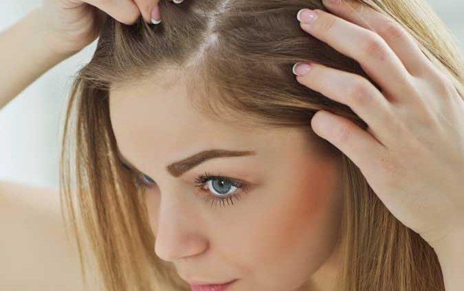 Women thinning hair